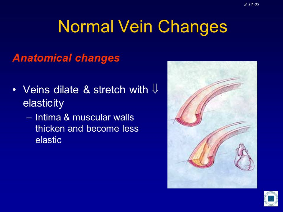 Normal Vein Changes Anatomical changes