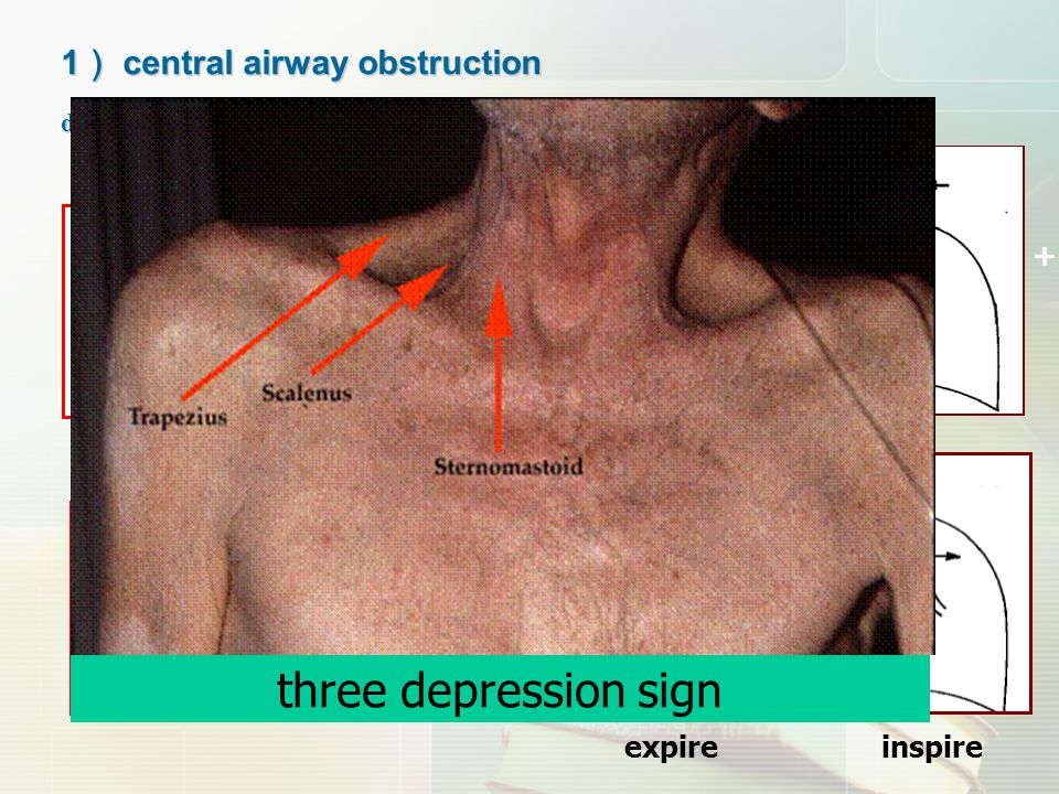 three depression sign 1) central airway obstruction