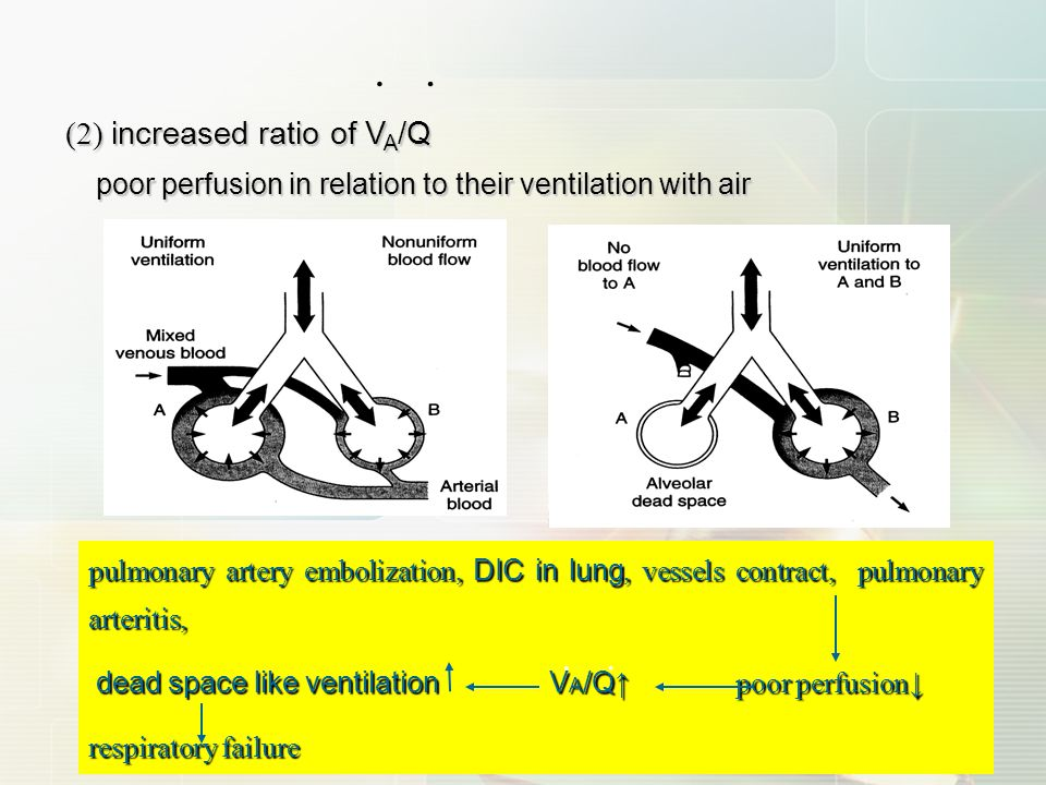 · · poor perfusion in relation to their ventilation with air
