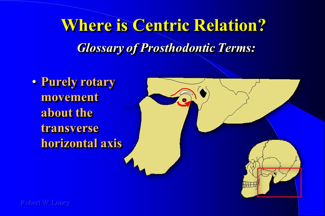 Where is Centric Relation Glossary of Prosthodontic Terms: