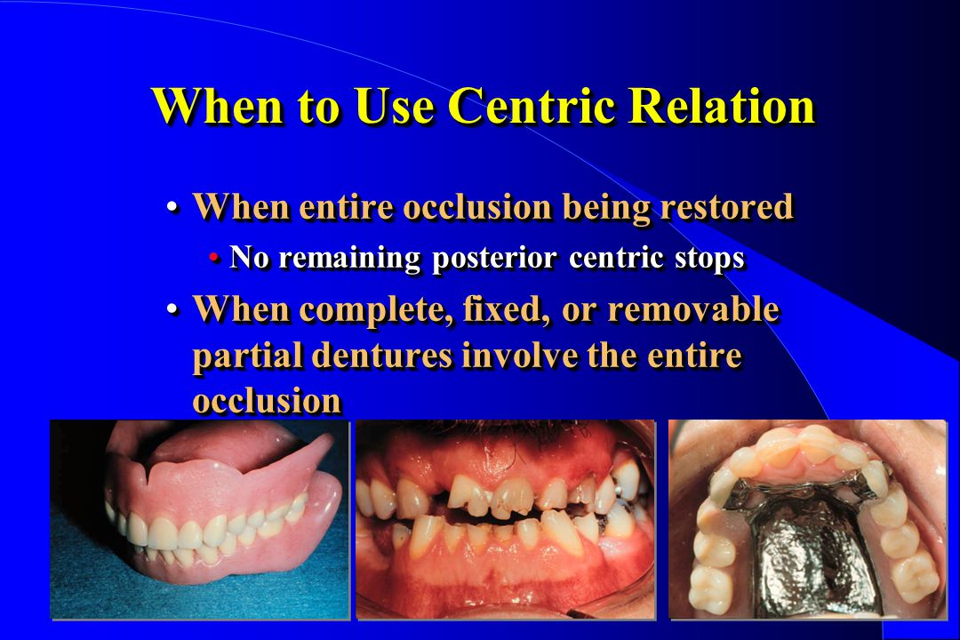 When to Use Centric Relation