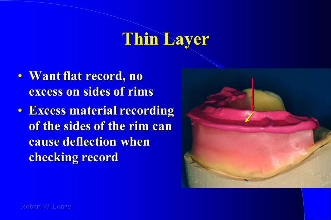 Thin Layer Want flat record, no excess on sides of rims