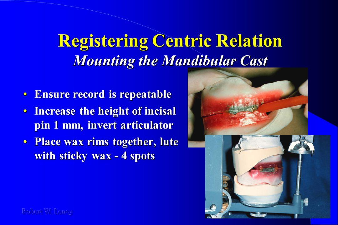 Registering Centric Relation Mounting the Mandibular Cast