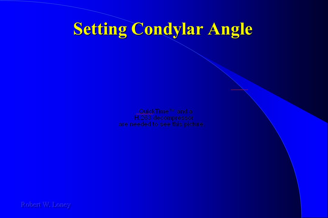 Setting Condylar Angle
