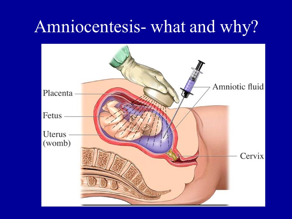 Amniocentesis- what and why