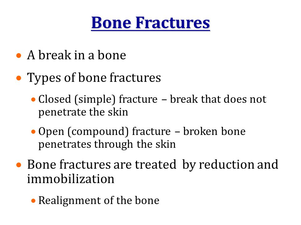 Bone Fractures A break in a bone Types of bone fractures