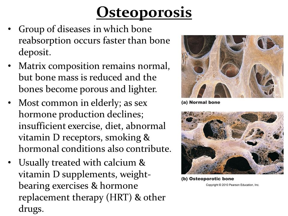 Osteoporosis Group of diseases in which bone reabsorption occurs faster than bone deposit.