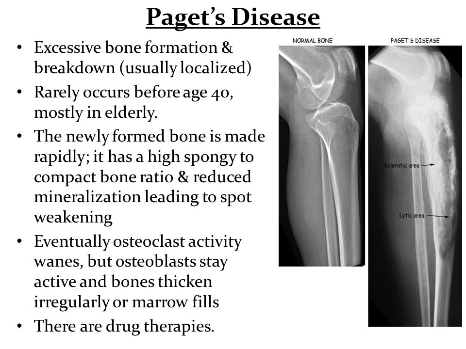 Paget's Disease Excessive bone formation & breakdown (usually localized) Rarely occurs before age 40, mostly in elderly.