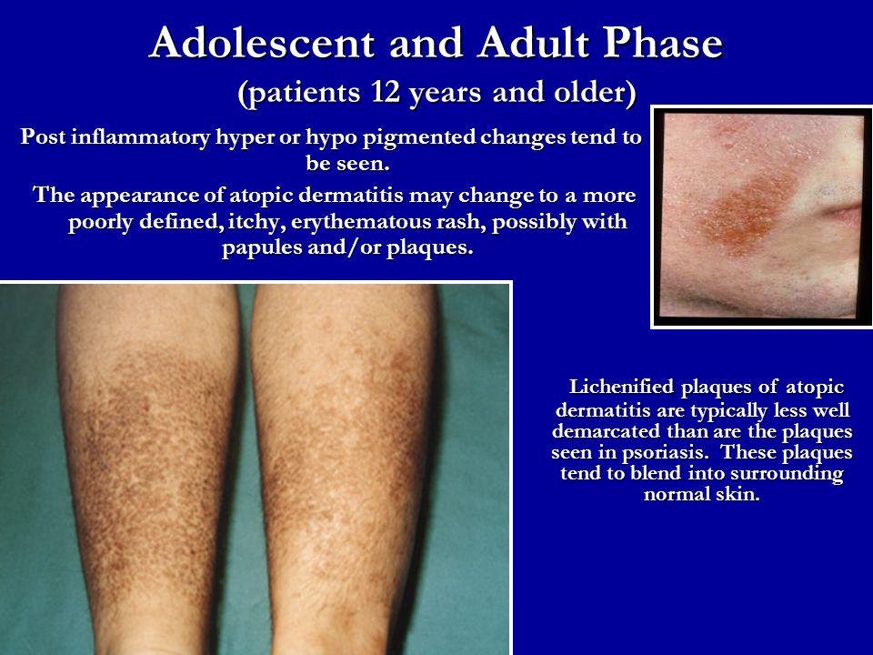 Adolescent and Adult Phase (patients 12 years and older)