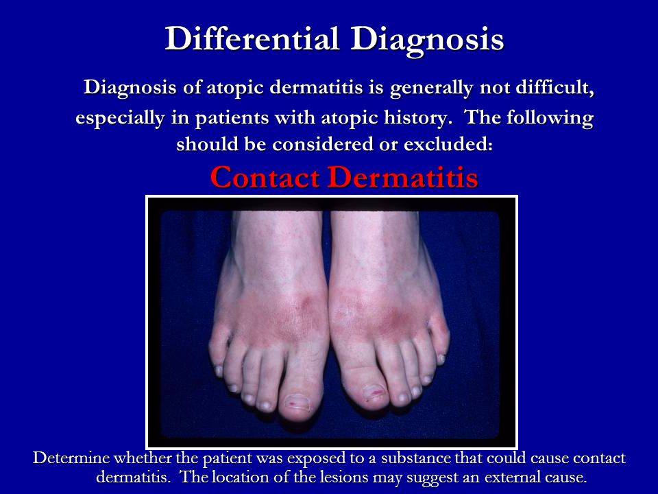 Differential Diagnosis Diagnosis of atopic dermatitis is generally not difficult, especially in patients with atopic history. The following should be considered or excluded: