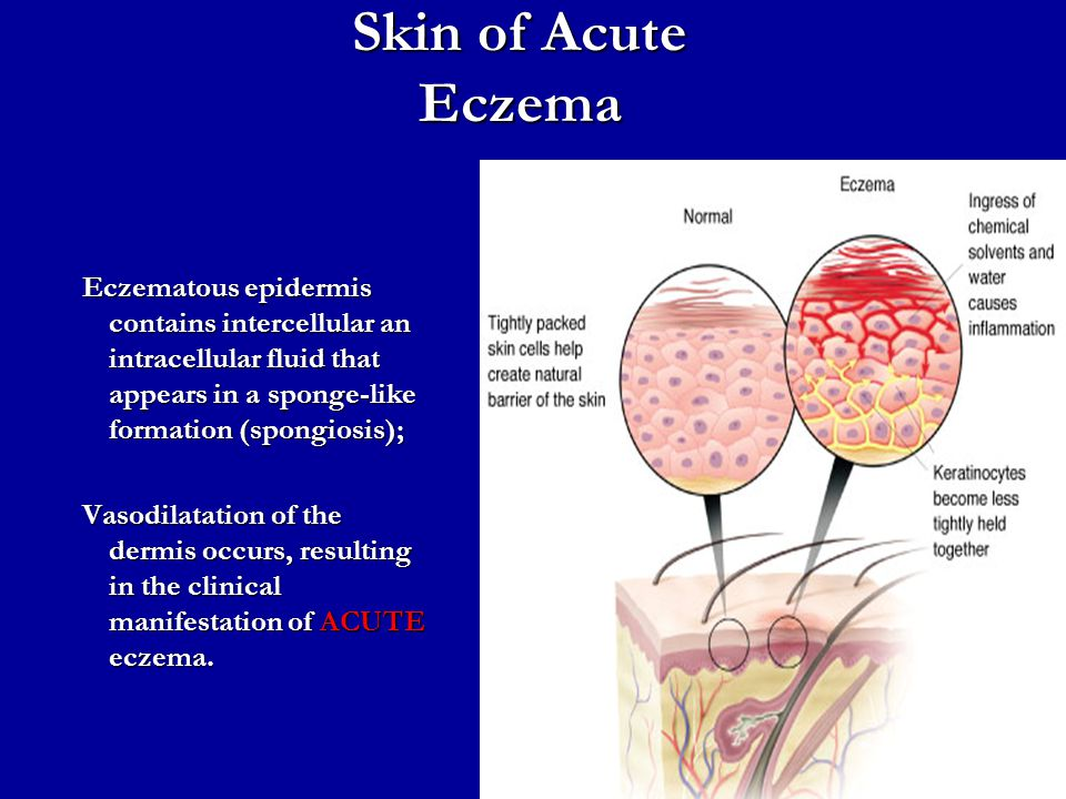 Skin of Acute Eczema Eczematous epidermis contains intercellular an intracellular fluid that appears in a sponge-like formation (spongiosis);