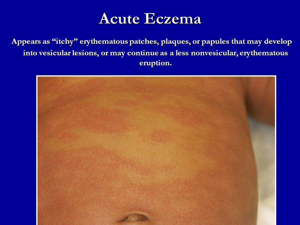 Acute Eczema