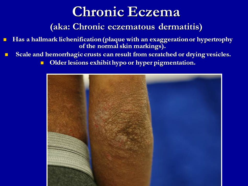 Chronic Eczema (aka: Chronic eczematous dermatitis)