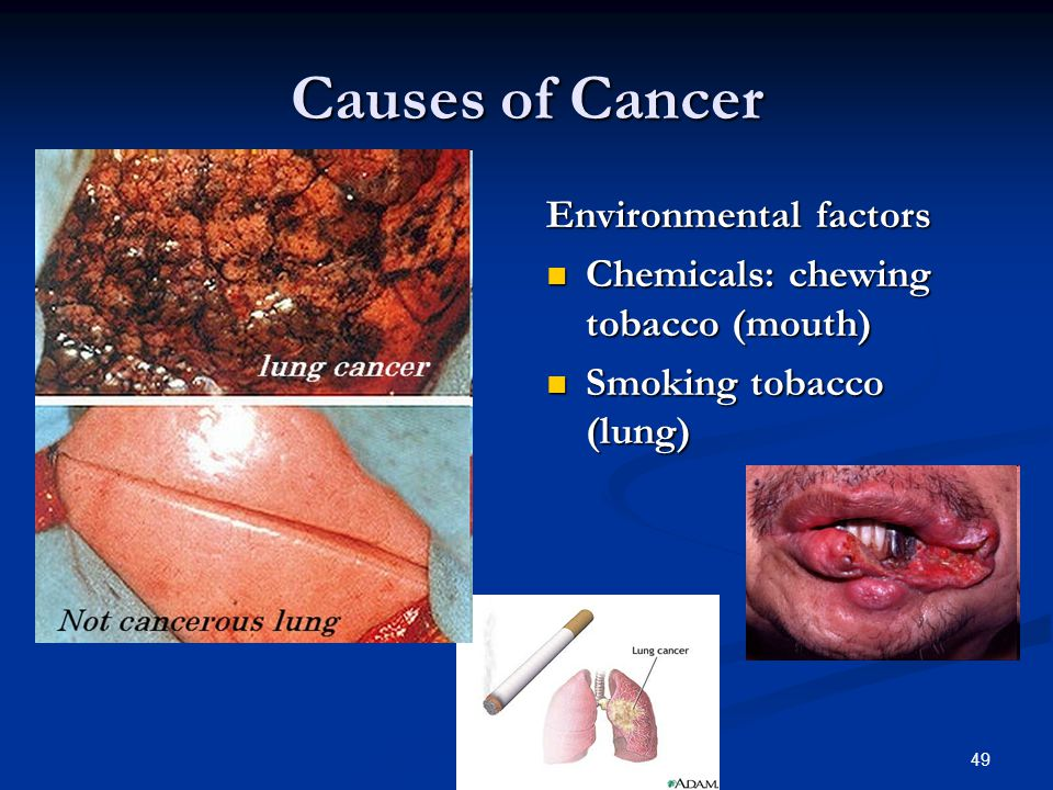 Causes of Cancer Environmental factors