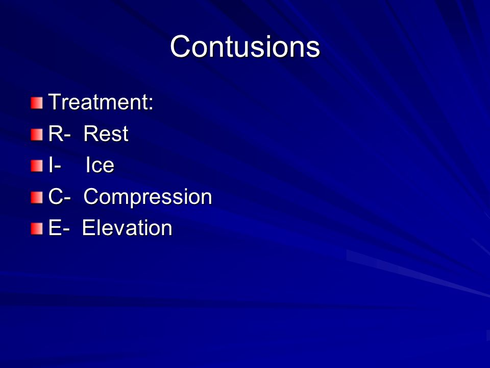 Contusions Treatment: R- Rest I- Ice C- Compression E- Elevation
