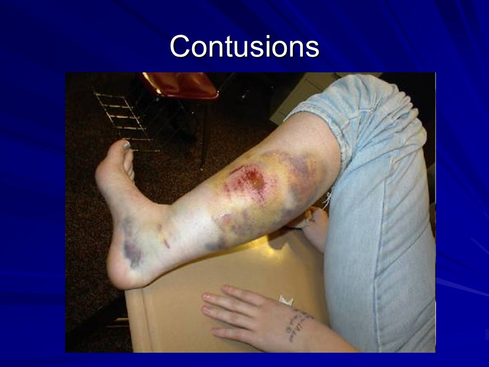 Contusions