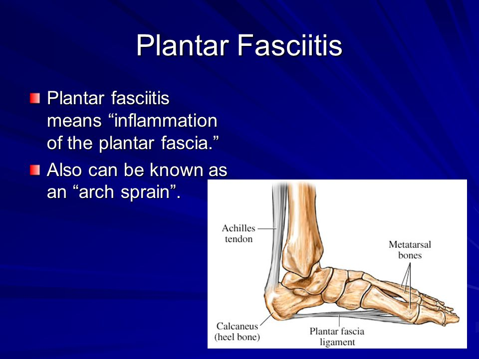 Plantar Fasciitis Plantar fasciitis means inflammation of the plantar fascia. Also can be known as an arch sprain .