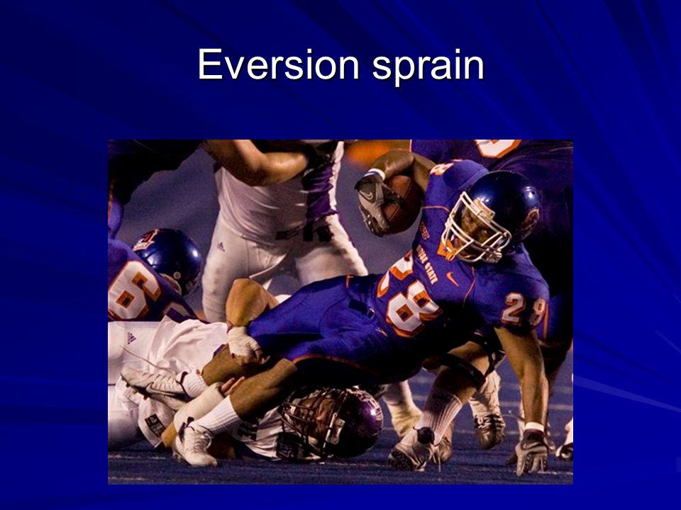 Eversion sprain