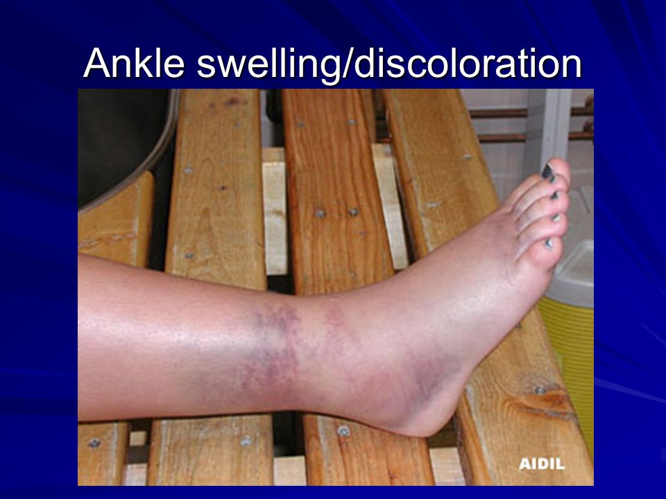 Ankle swelling/discoloration