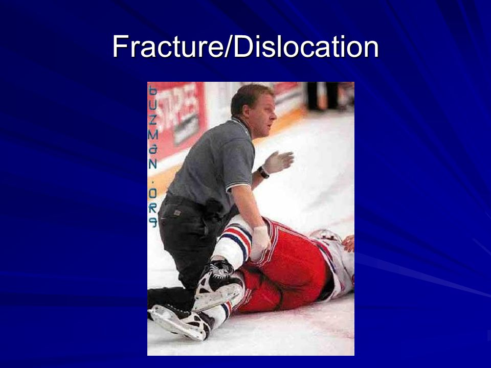 Fracture/Dislocation