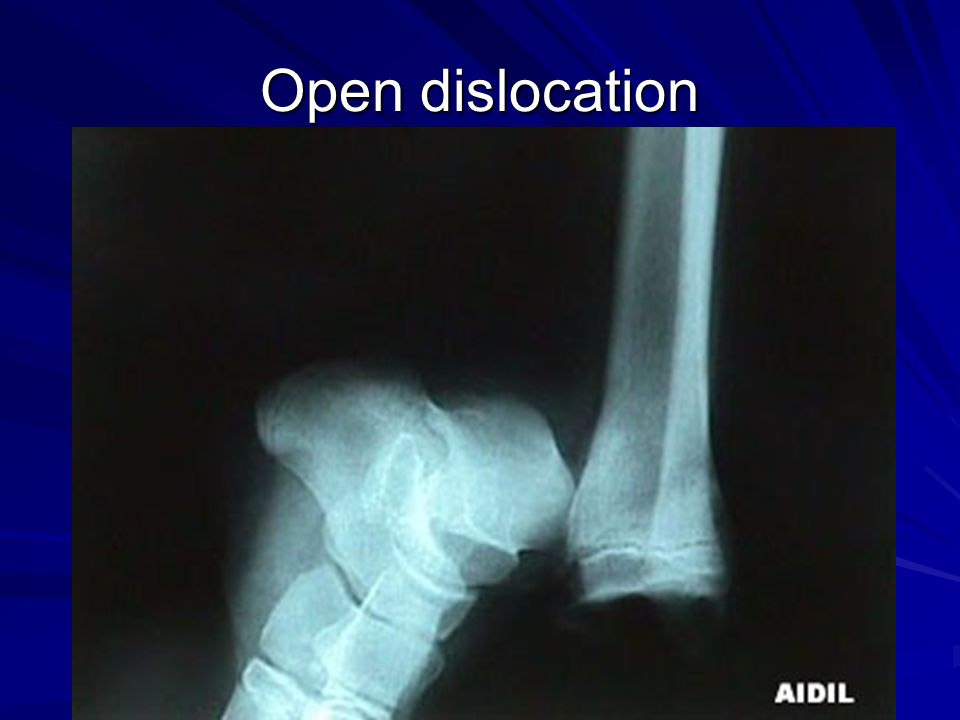 Open dislocation