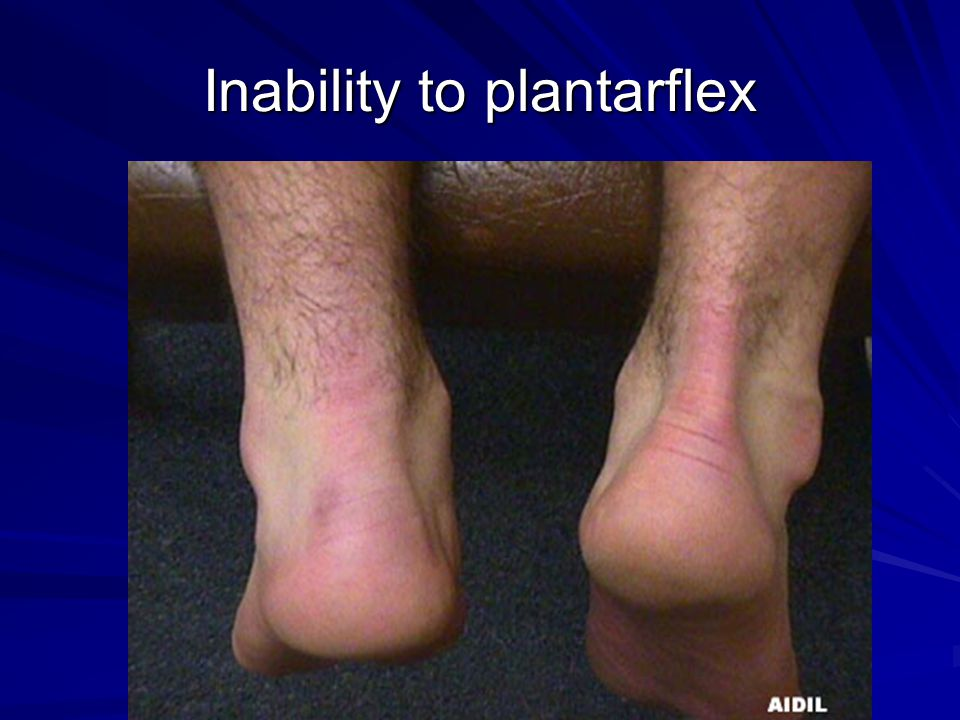 Inability to plantarflex