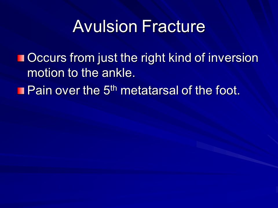 Avulsion Fracture Occurs from just the right kind of inversion motion to the ankle.