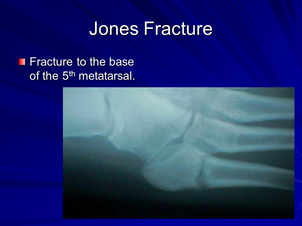 Jones Fracture Fracture to the base of the 5th metatarsal.