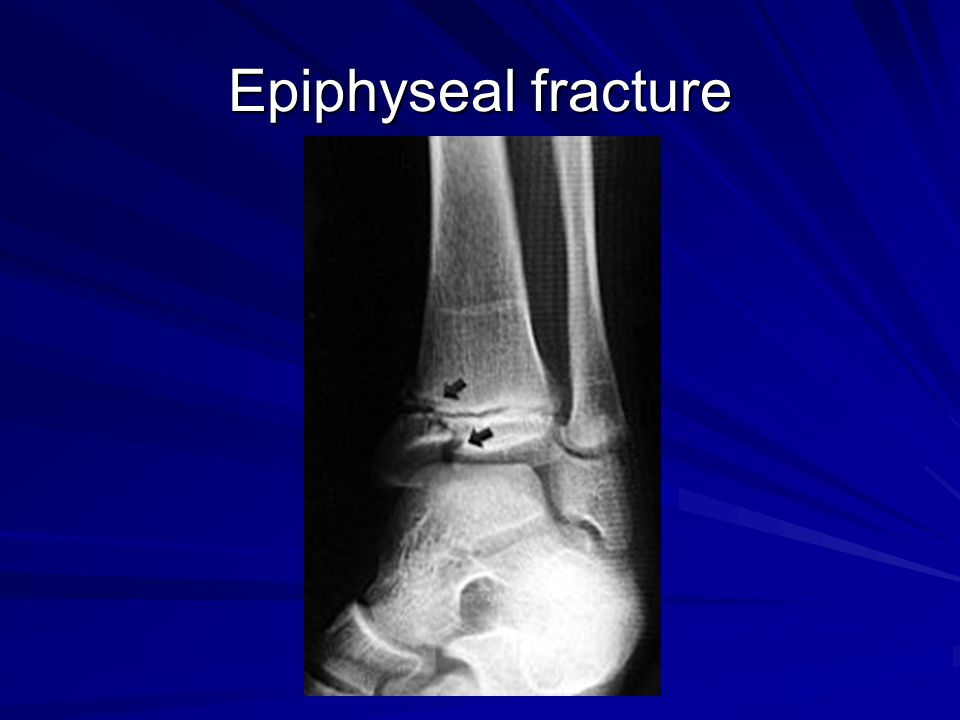 Epiphyseal fracture