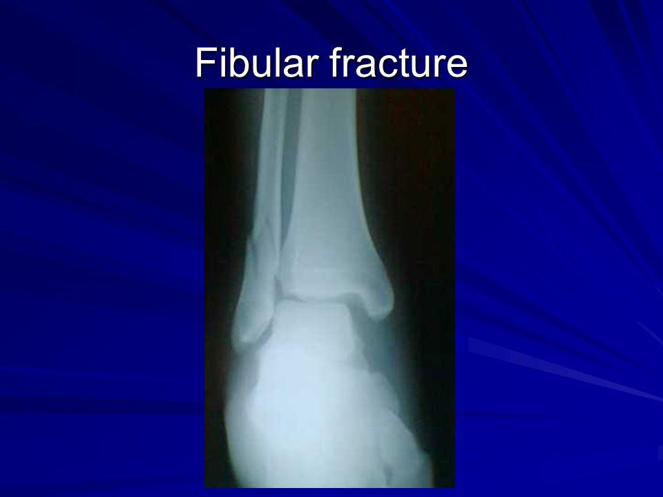 Fibular fracture