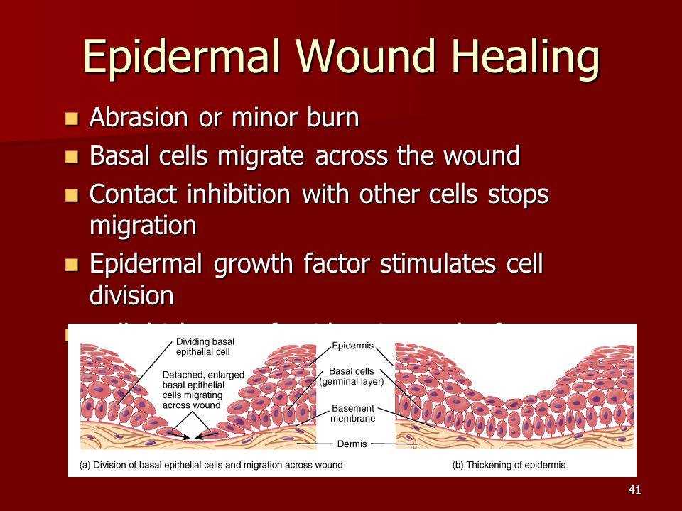 the stimulation of the wound healing Learn how to heal open wounds faster be the cause of the stimulation of the healing university hospital's center for wound healing in.