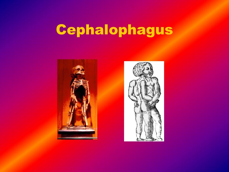 Cephalophagus