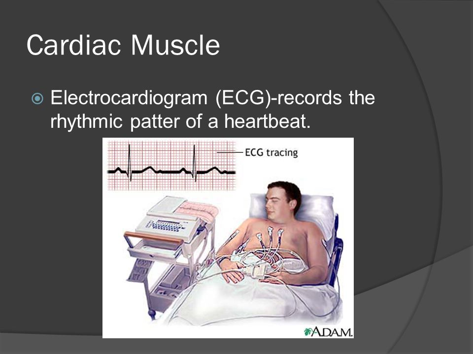Cardiac Muscle Electrocardiogram (ECG)-records the rhythmic patter of a heartbeat.