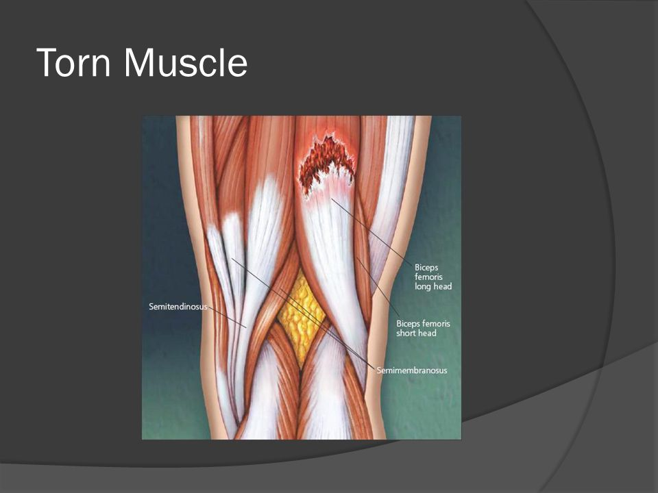 Torn Muscle