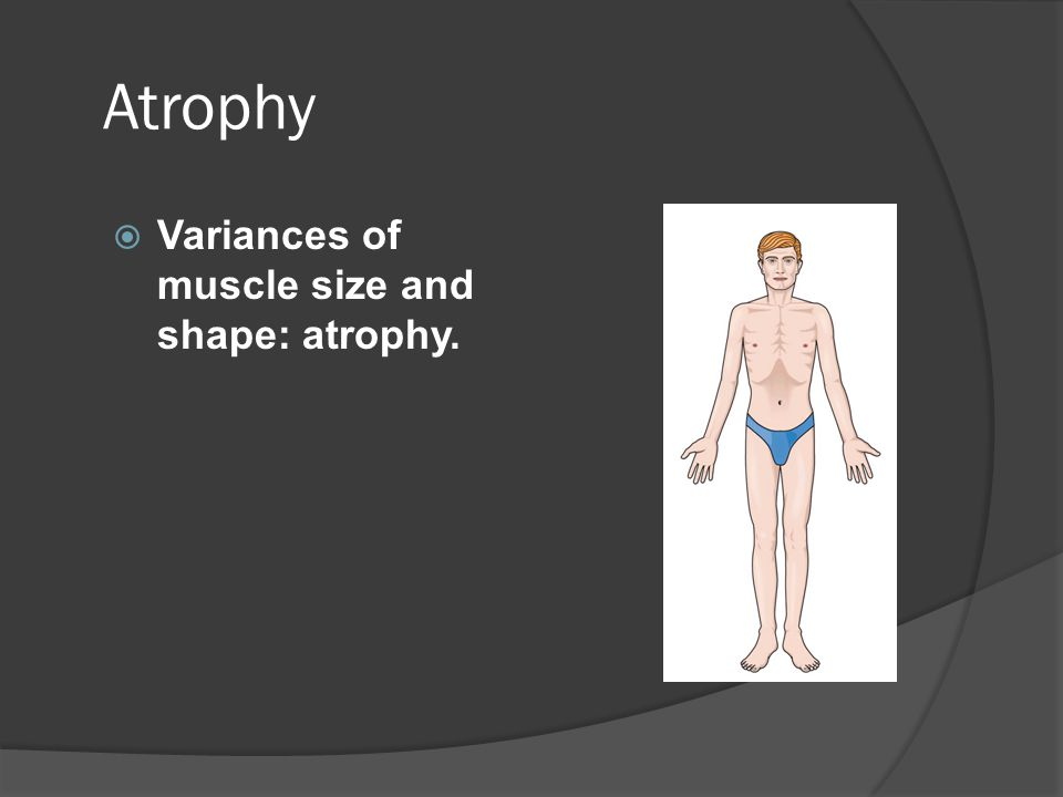 Atrophy Variances of muscle size and shape: atrophy.