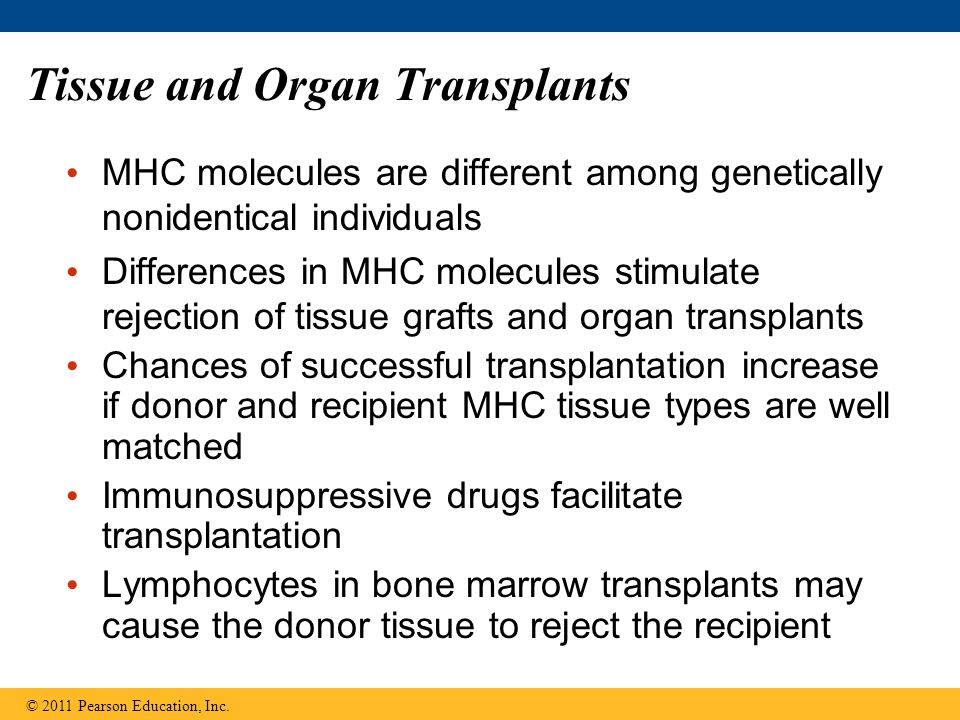 Tissue and Organ Transplants