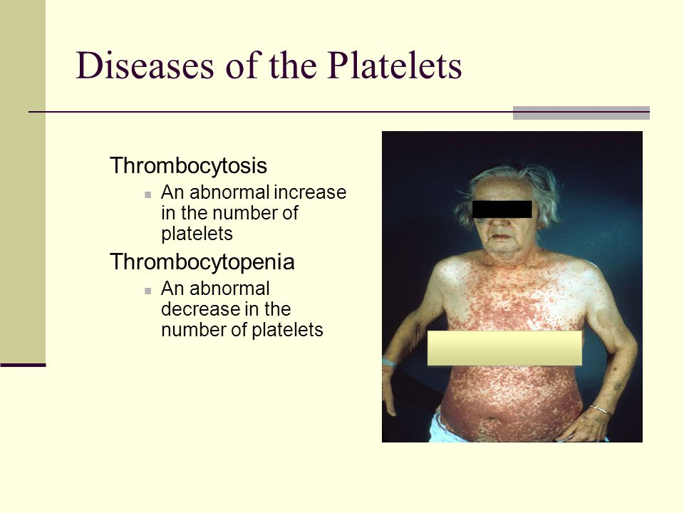 Diseases of the Platelets