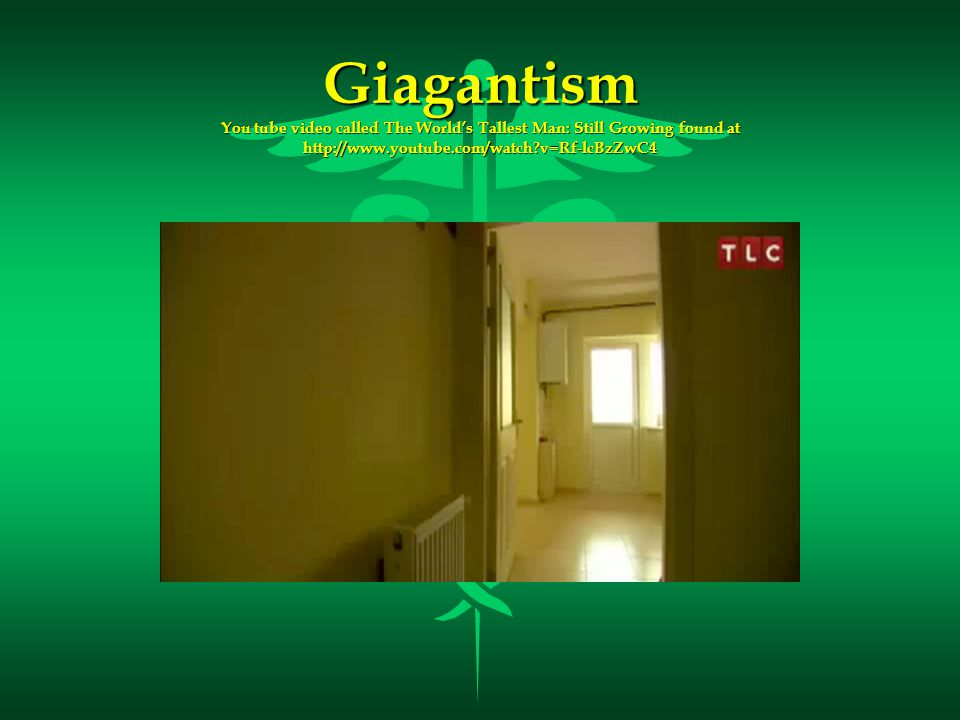 Giagantism You tube video called The World's Tallest Man: Still Growing found at http://www.youtube.com/watch v=Rf-lcBzZwC4