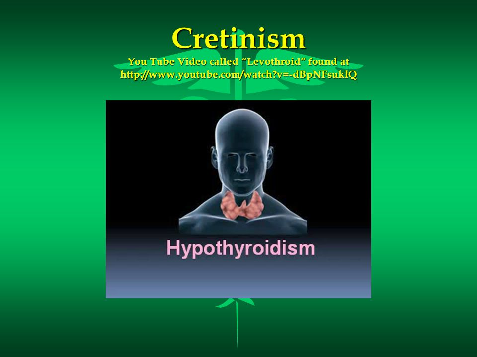 Cretinism You Tube Video called Levothroid found at http://www