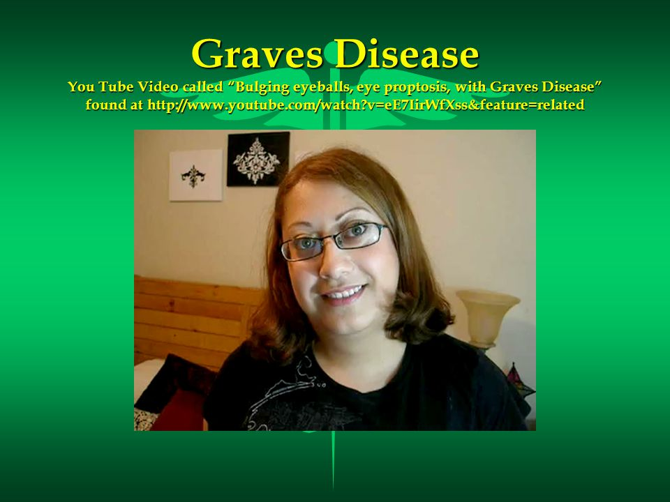 Graves Disease You Tube Video called Bulging eyeballs, eye proptosis, with Graves Disease found at http://www.youtube.com/watch v=eE7IirWfXss&feature=related