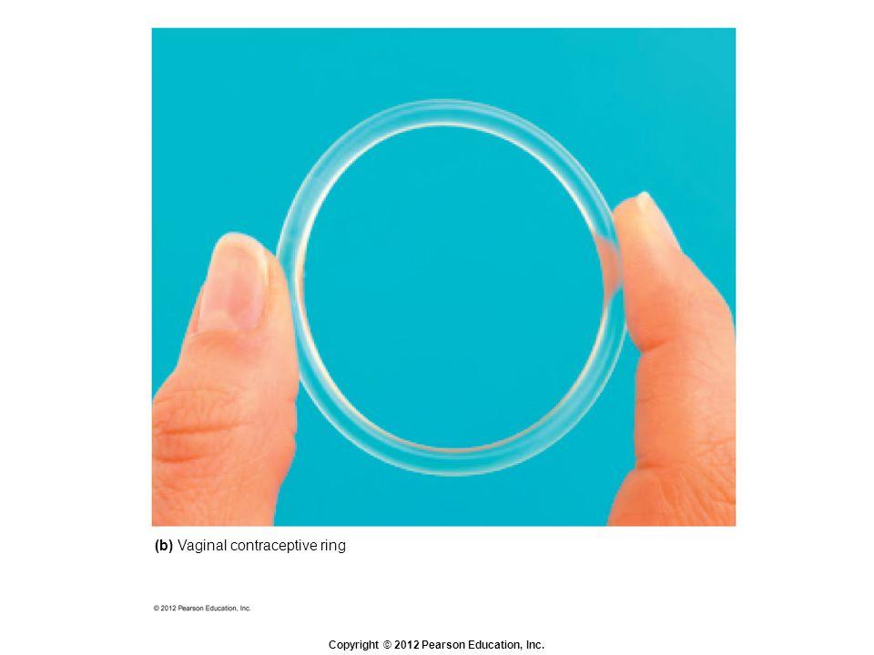 (b) Vaginal contraceptive ring
