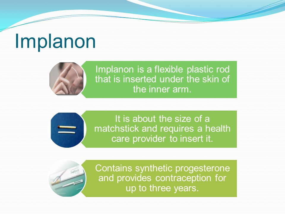 Implanon Implanon is a flexible plastic rod that is inserted under the skin of the inner arm.