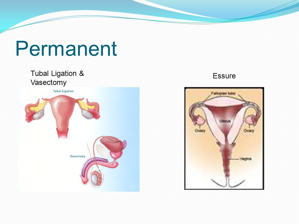 Permanent Tubal Ligation & Vasectomy Essure