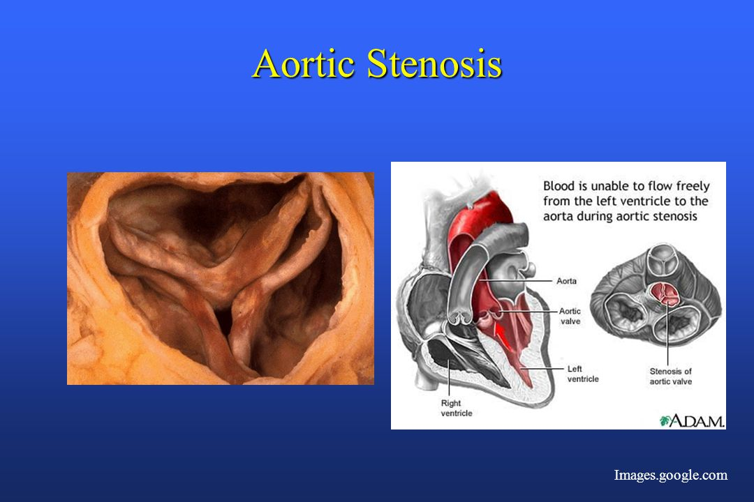 Aortic Stenosis Images.google.com