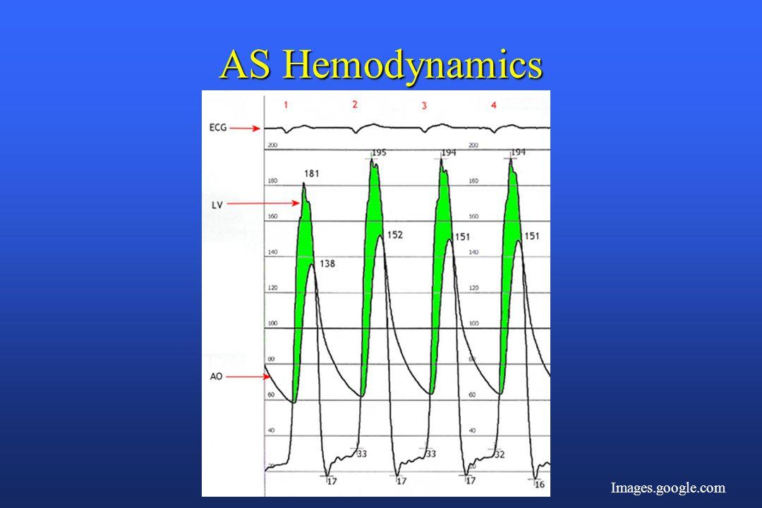 AS Hemodynamics Images.google.com