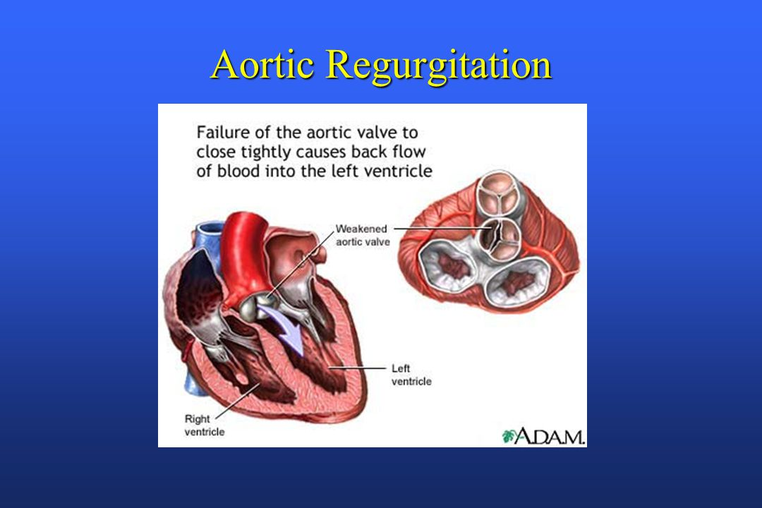 Valvular Heart Disease - ppt video online download  Aortic