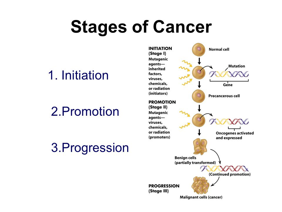 Stages of Cancer 1. Initiation 2.Promotion 3.Progression