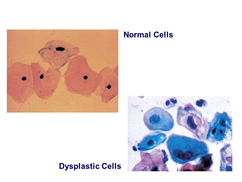 Normal Cells Dysplastic Cells