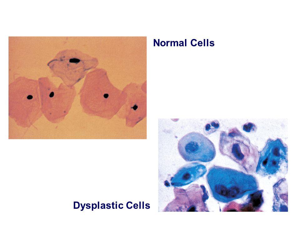 Normal Cells Dysplastic Cells