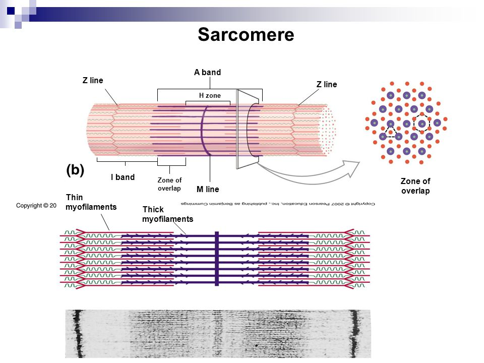 Sarcomere A band Z line Z line I band Zone of overlap M line